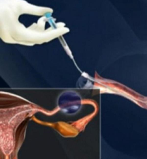 التلقيح داخل الرحم