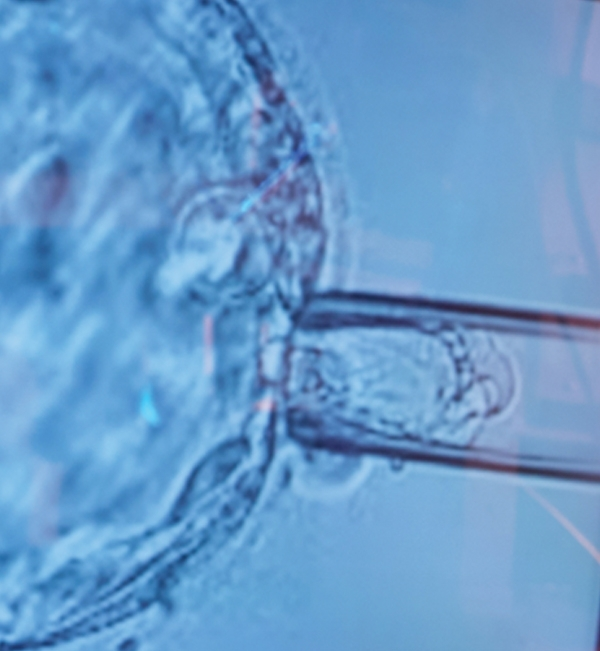 الفحص الجيني قبل الزرع جي بي أس / بي جي تي